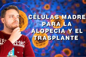 Células madre para la alopecia y el trasplante capilar - Los Consejos de Michael
