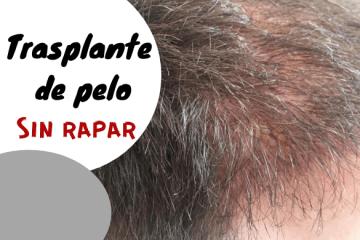 Trasplante de pelo sin rapar: ¿Es posible? - Los Consejos de Michael